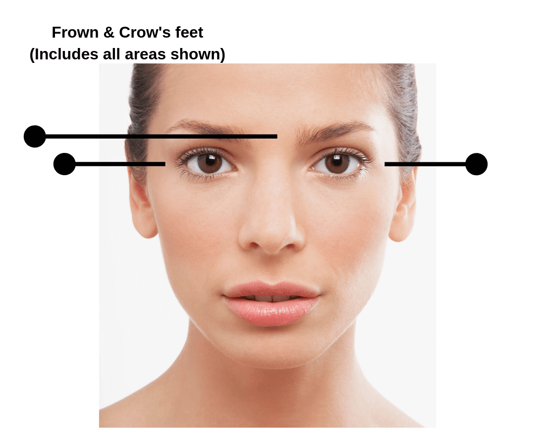 Botox Prices Frown and Crow's Feet