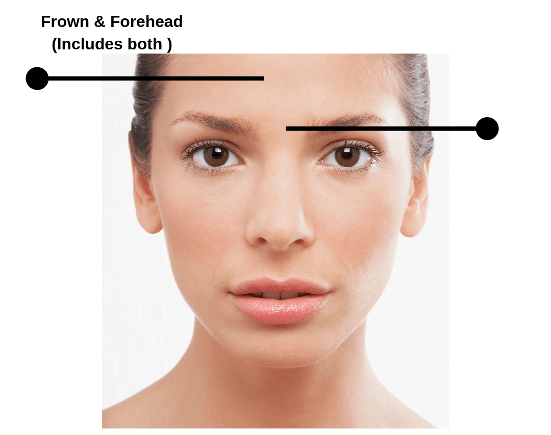 Botox Pricing Guide Top 4 Areas Of Face Number Of Units Required